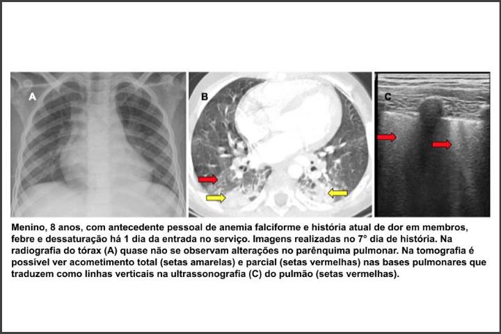 Pesquisa ultrassom covid crianças 1